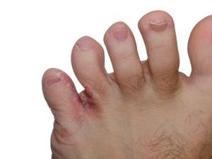 athletes-foot