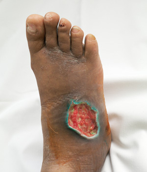diabetic-ulcer-wounds