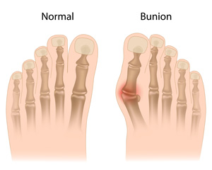 foot-bunion