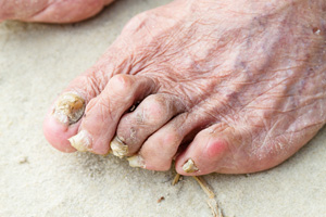 fungal-nails-hammertoes
